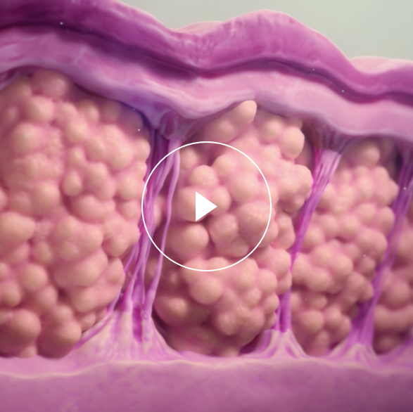 How RESONIC works for cellulite reduction video thumbnail