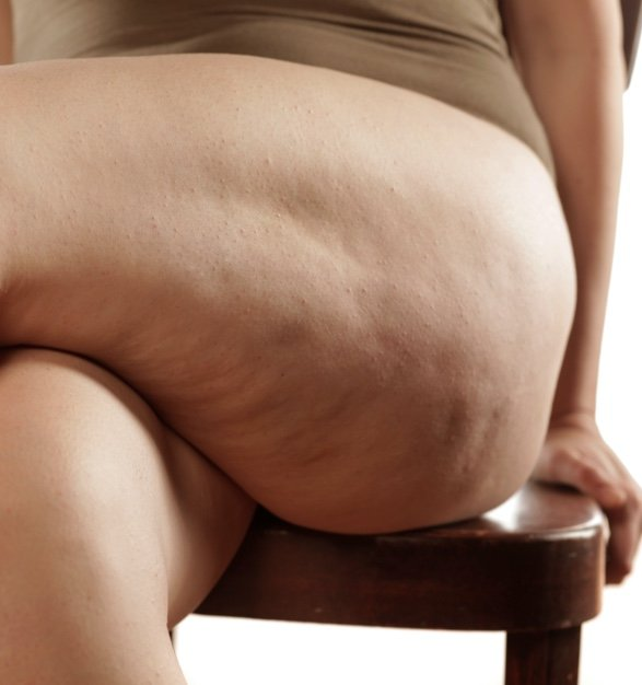 Woman seated with cellulite on thigh