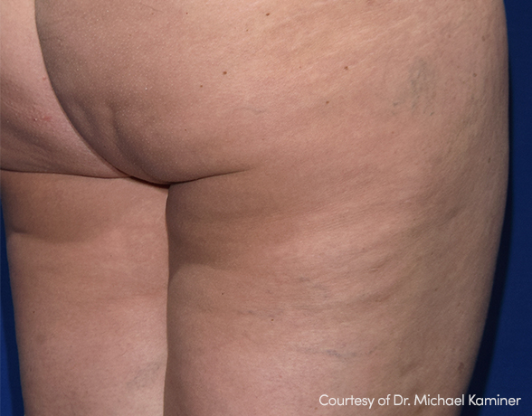 Cellulite after RESONIC treatment