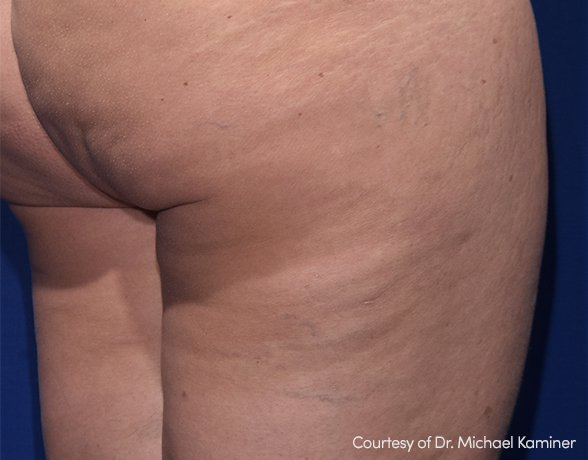 Cellulite before RESONIC treatment